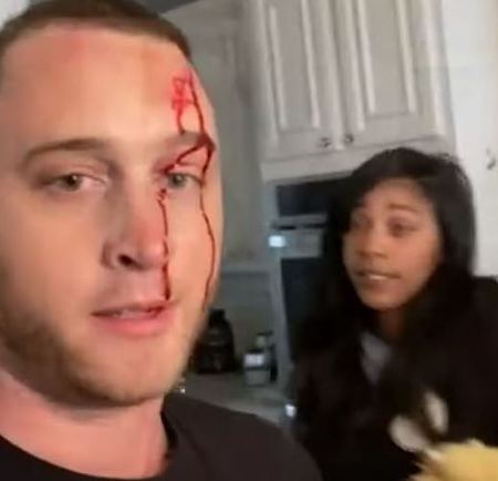 Chet Hank, in March 2021, shared a video oh him claiming his ex-girlfriend attacked him with a knife